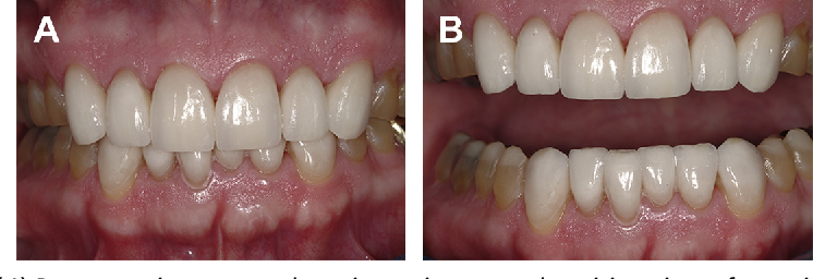 Fig. 15. (A) Postoperative retracted maximum intercuspal position view of anterior restorations. (B) Postoperative retracted slight opening to demonstrate transitional posterior restorations with definitive anterior restorations.