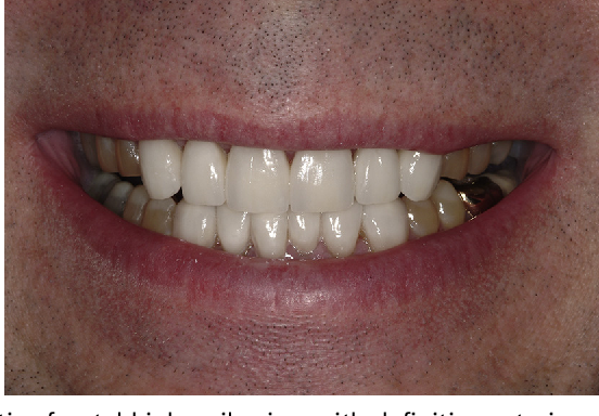 Fig. 16. Postoperative frontal high smile view with definitive anterior restorations.