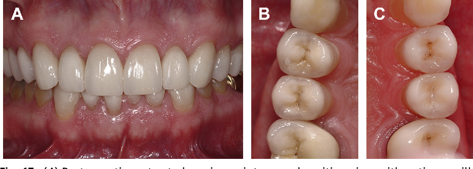 Fig. 17. (A) Postoperative retracted maximum intercuspal position view with entire maxilla restored. (B) Postoperative occlusal view of the maxillary posterior right side. (C) Postoperative occlusal view of the maxillary posterior left side.