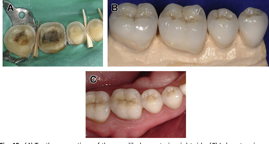Fig. 18. (A) Tooth preparations of the mandibular posterior right side. (B) Laboratory image of the mandibular posterior right reinforced lithium disilicate restorations. (C) Postoperative occlusal view of the mandibular posterior right side.