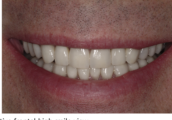 Fig. 20. Postoperative frontal high smile view.