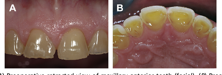Fig. 2. (A) Preoperative retracted view of maxillary anterior teeth (facial). (B) Preoperative retracted view of maxillary anterior teeth (palatal).