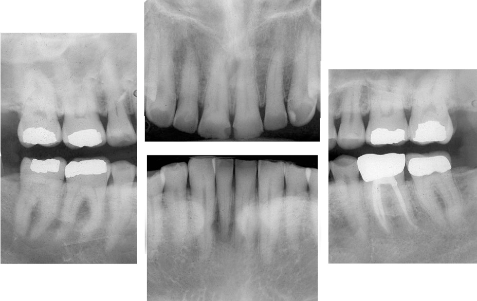Fig. 4. Preoperative full-mouth radiographs.