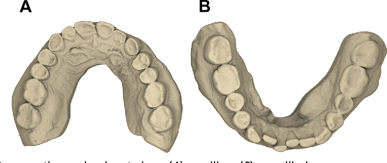 Fig. 5. Preoperative occlusal cast views (A) maxillary (B) mandibular.