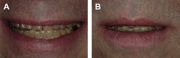 Fig. 7. (A) Preoperative frontal high smile view. (B) Preoperative lips in repose view.