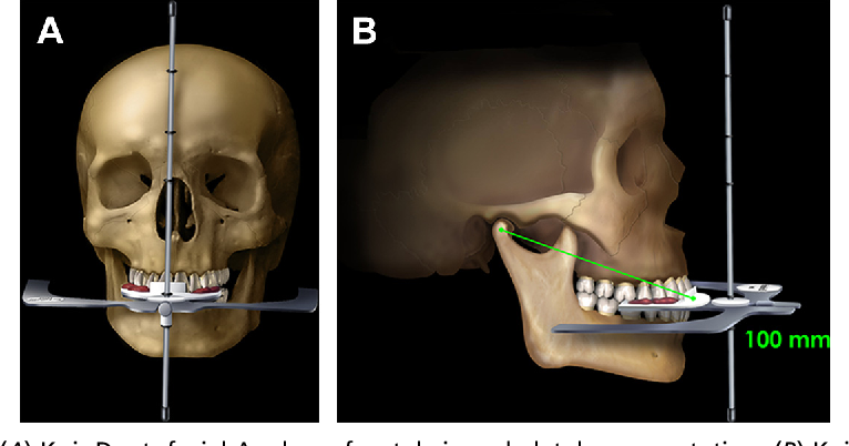 Fig. 10. (A) Kois Dentofacial Analyzer frontal view, skeletal representation. (B) Kois Dentofacial Analyzer lateral view, skeletal representation.