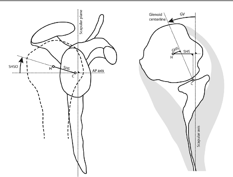 Importance Of A Three Dimensional Measure Of Humeral Head