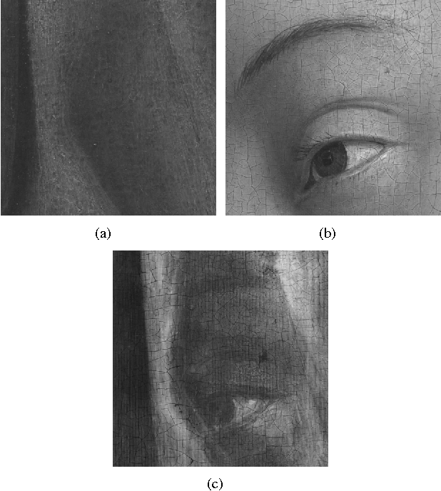Figure 1 for X-ray image separation via coupled dictionary learning