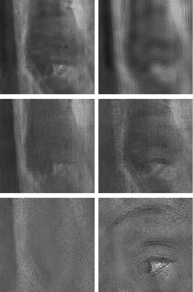 Figure 3 for X-ray image separation via coupled dictionary learning