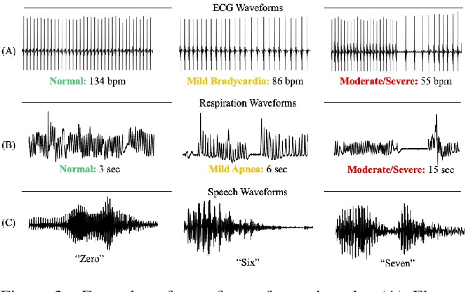 Figure 4 for Explaining Deep Classification of Time-Series Data with Learned Prototypes