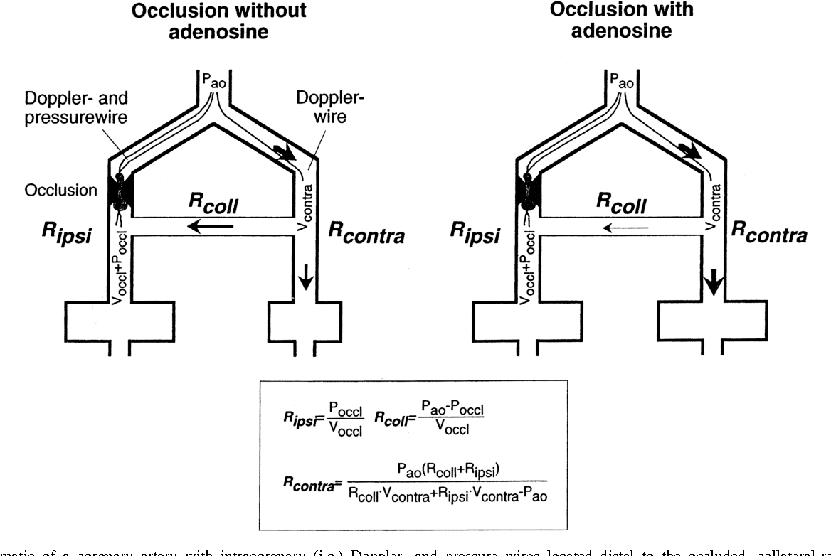 Collateral and collateral-adjacent hyperemic vascular resistance ...