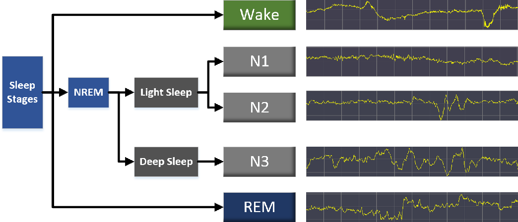 Figure 1 for Sleep Staging Based on Multi Scale Dual Attention Network