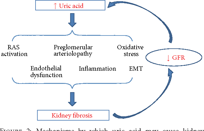 Figure 2: Mechanisms by which uric acid may cause kidney fibrosis based on experimental animal studies. EMT: epithelialmesenchymal transition; RAS: renin-angiotensin system.