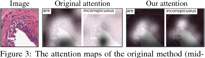 Figure 4 for MDNet: A Semantically and Visually Interpretable Medical Image Diagnosis Network