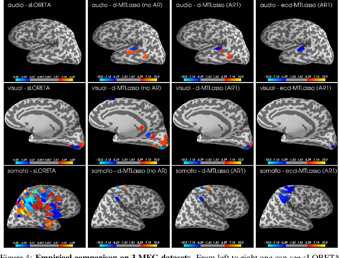 Figure 4 for Statistical control for spatio-temporal MEG/EEG source imaging with desparsified multi-task Lasso