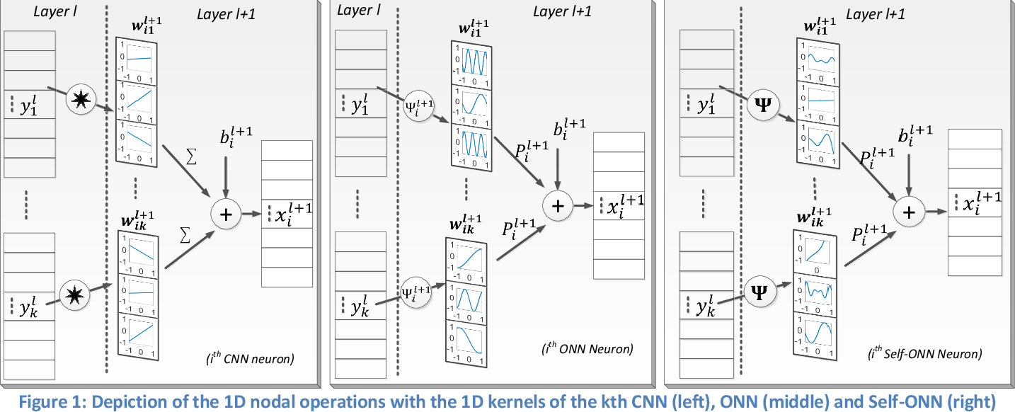 Figure 1 for Early Bearing Fault Diagnosis of Rotating Machinery by 1D Self-Organized Operational Neural Networks