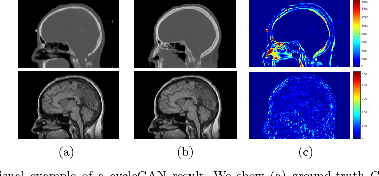 Figure 1 for Unpaired Brain MR-to-CT Synthesis using a Structure-Constrained CycleGAN