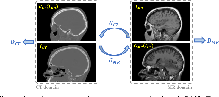 Figure 2 for Unpaired Brain MR-to-CT Synthesis using a Structure-Constrained CycleGAN