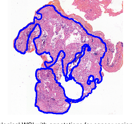 Figure 1 for Deep Learning Methods for Lung Cancer Segmentation in Whole-slide Histopathology Images -- the ACDC@LungHP Challenge 2019