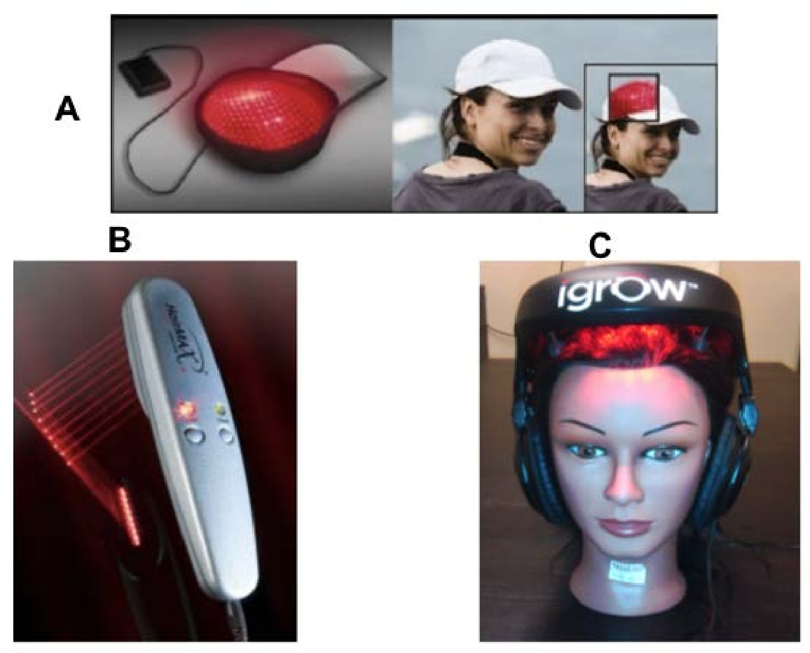 Ex&les of LLLT devices for treatment of hair loss. (A)  sc 1 st  Semantic Scholar & Figure 4 from Low Level Laser ( Light ) Therapy ( LLLT ) for ...