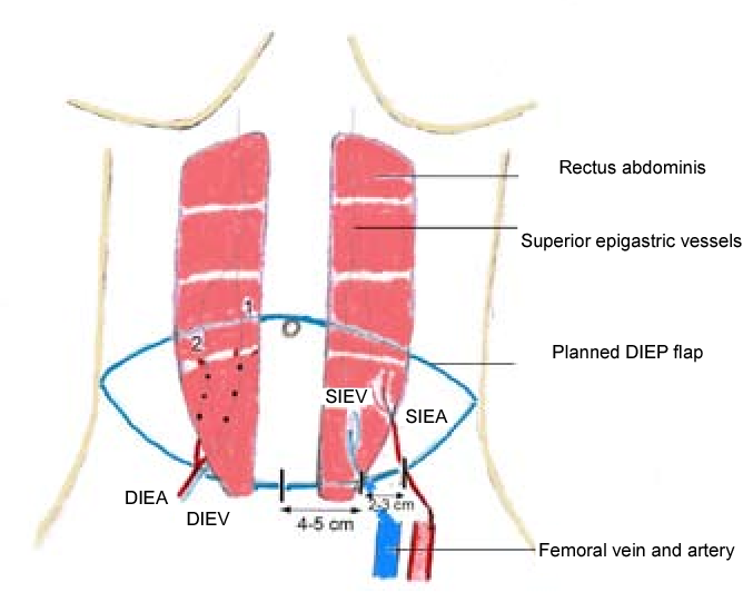 Figure 3 From The Use Of The Diep Flap In The Modern Reconstructive