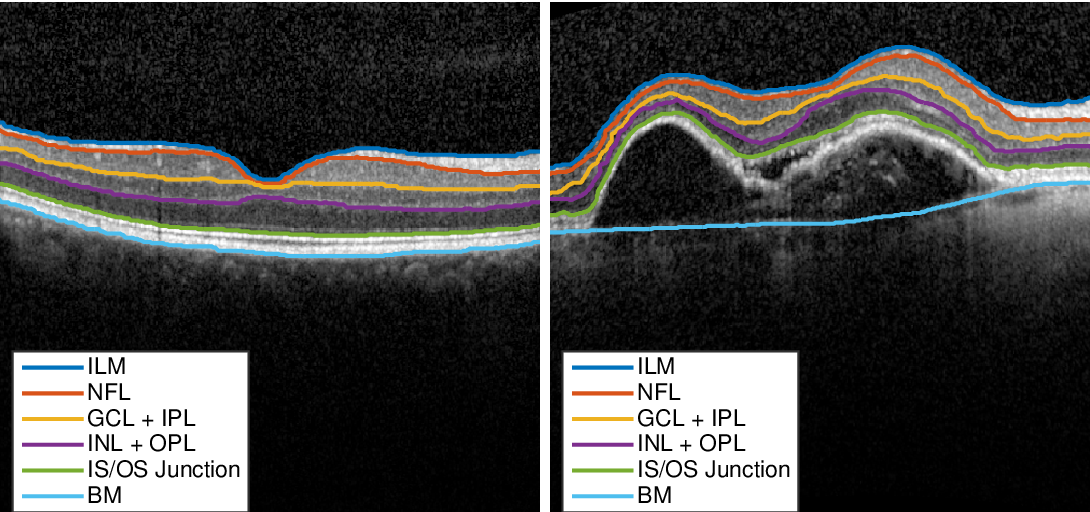 Figure 1 for Pathological OCT Retinal Layer Segmentation using Branch Residual U-shape Networks
