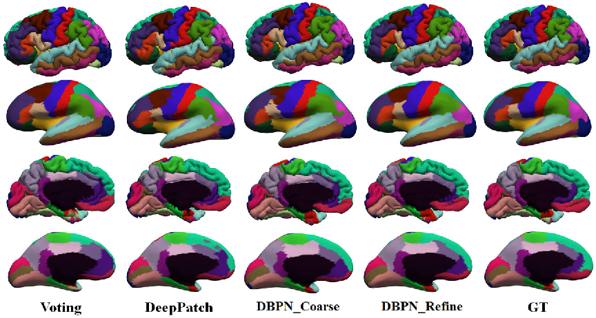 Figure 3 for Geometric Brain Surface Network For Brain Cortical Parcellation