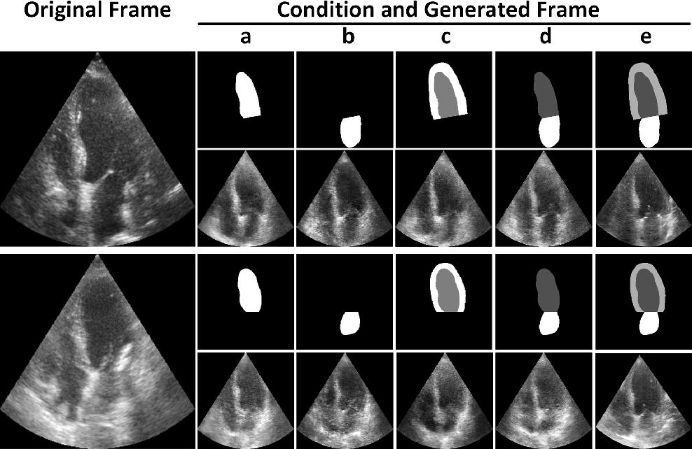 Figure 1 for GAN-enhanced Conditional Echocardiogram Generation
