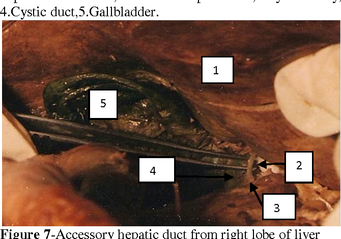 The Study Of Variations Of Extra Hepatic Biliary Apparatus