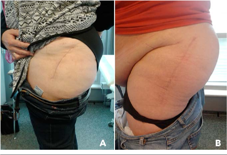 Figure 1. Skin incision directly related to body mass index in obese (A) and morbidly obese (B) patients.