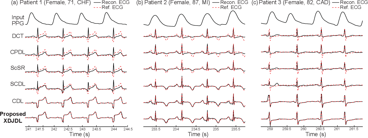 Figure 2 for Cross-domain Joint Dictionary Learning for ECG Inference from PPG