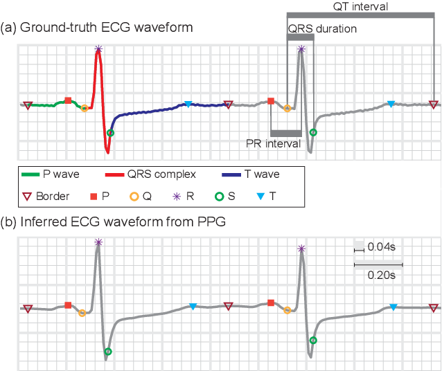 Figure 3 for Cross-domain Joint Dictionary Learning for ECG Inference from PPG