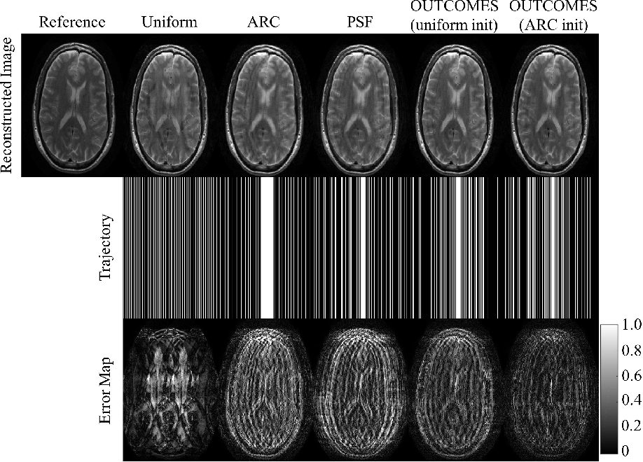 Figure 3 for OUTCOMES: Rapid Under-sampling Optimization achieves up to 50% improvements in reconstruction accuracy for multi-contrast MRI sequences
