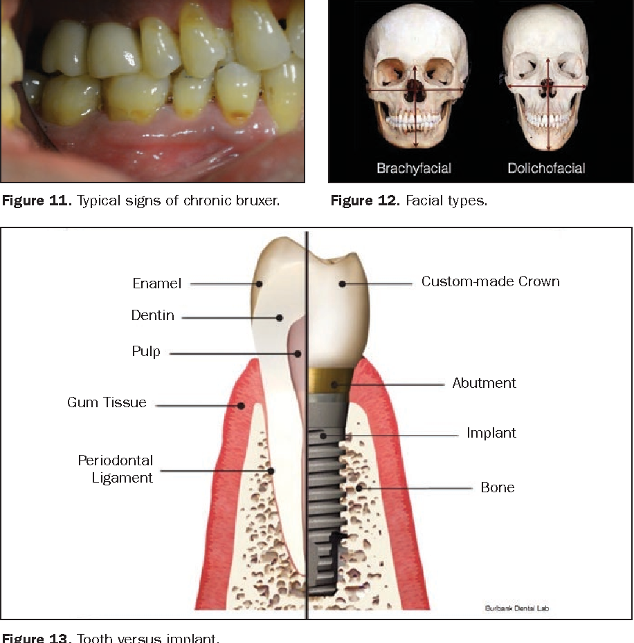 Figure 13 from Immediately Loading Dental Implants. Doing It Right ...