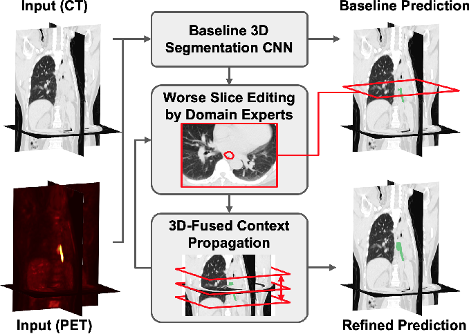 Figure 1 for Interactive Radiotherapy Target Delineation with 3D-Fused Context Propagation