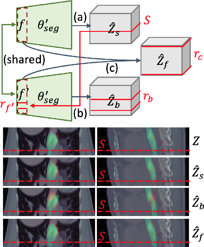 Figure 3 for Interactive Radiotherapy Target Delineation with 3D-Fused Context Propagation