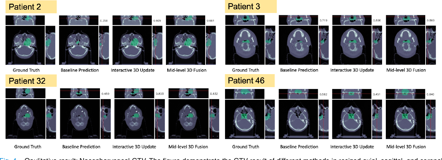 Figure 4 for Interactive Radiotherapy Target Delineation with 3D-Fused Context Propagation