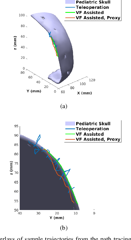 Figure 2 for Anatomical Mesh-Based Virtual Fixtures for Surgical Robots