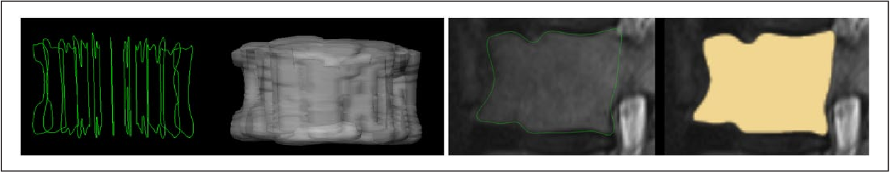 Figure 1 for Vertebral body segmentation with GrowCut: Initial experience, workflow and practical application