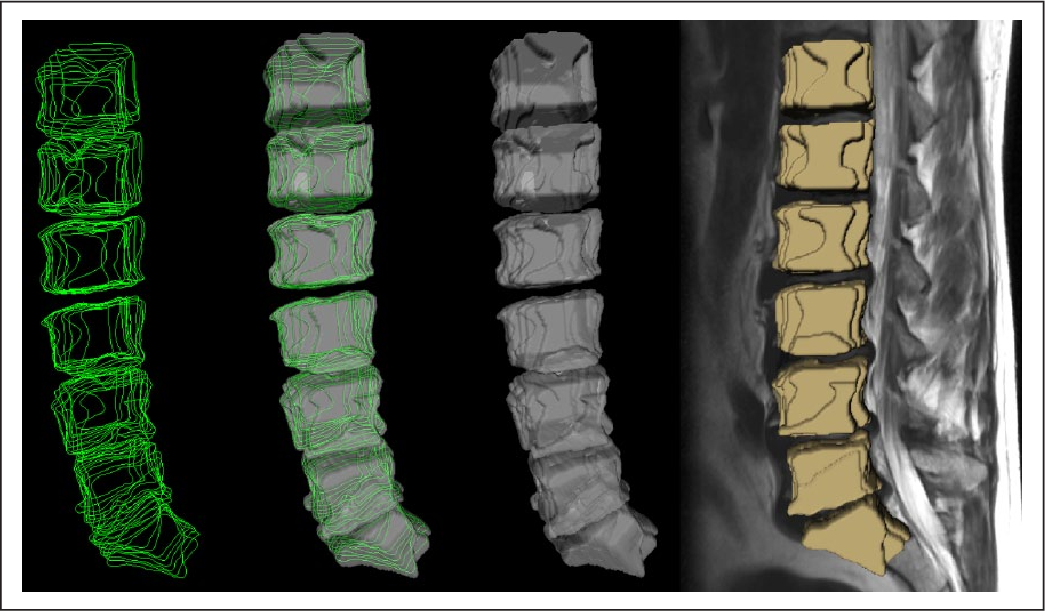 Figure 3 for Vertebral body segmentation with GrowCut: Initial experience, workflow and practical application
