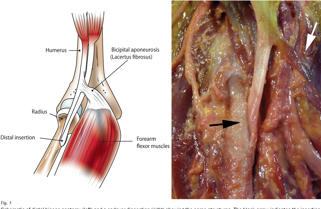 Figure 3 from Distal biceps tendon injuries. - Semantic Scholar