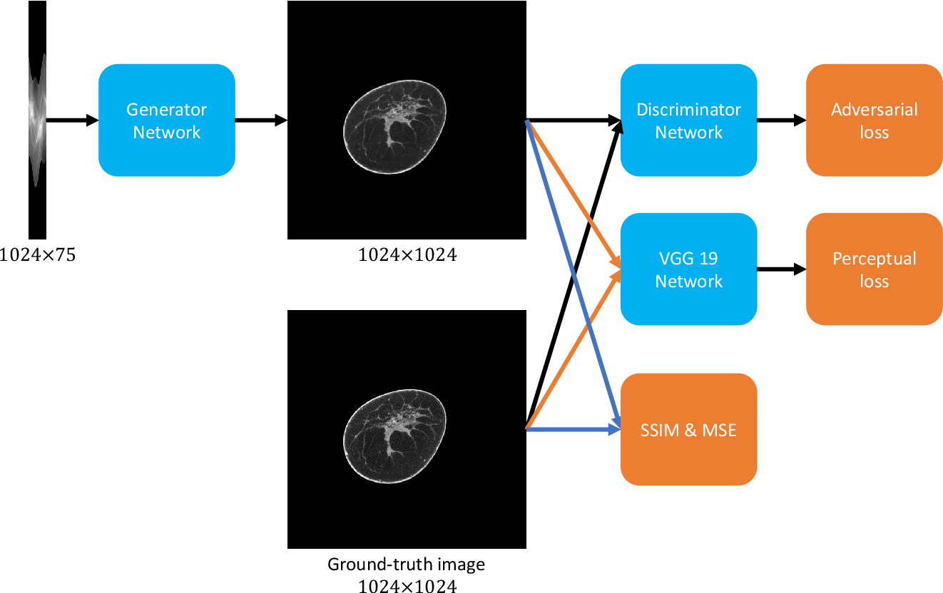 Figure 1 for Deep Efficient End-to-end Reconstruction (DEER) Network for Low-dose Few-view Breast CT from Projection Data