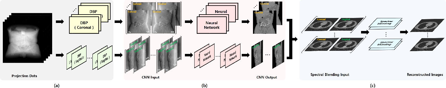 Figure 1 for Differentiated Backprojection Domain Deep Learning for Conebeam Artifact Removal