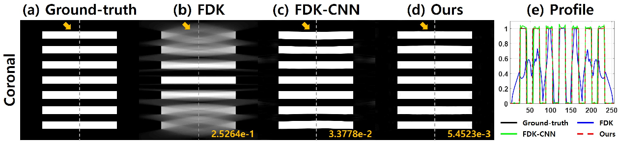 Figure 2 for Differentiated Backprojection Domain Deep Learning for Conebeam Artifact Removal