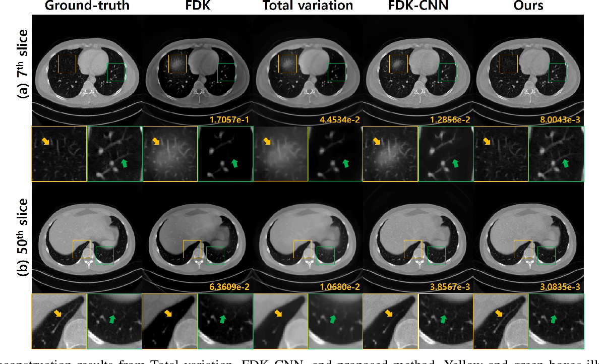 Figure 4 for Differentiated Backprojection Domain Deep Learning for Conebeam Artifact Removal
