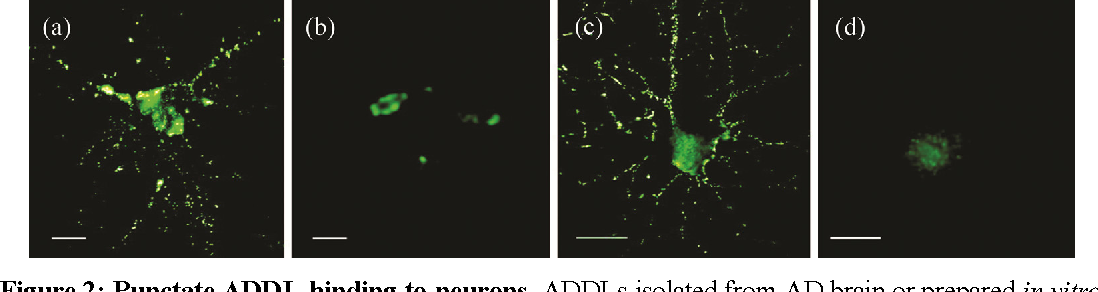 Figure 2: Punctate ADDL-binding to neurons. ADDLs isolated from AD brain or prepared in vitro show identical punctate binding to neuronal cell-surface proteins. Cultured hippocampal neurons were incubated with soluble extracts of human brain or synthetic ADDLs. Immunoreactivity against ADDLs was visualized by microscopy using M93 antibody. Soluble AD-brain proteins (a), soluble control-brain proteins (b), synthetic ADDLs (c), and synthetic ADDLs pre-treated (1 h) with oligomer-specific antibody M71 (d) are shown. Small puncta distributed along neurites, are evident for AD extracts and synthetic ADDLs, but not for control extracts or antibody-preadsorbed ADDLs (Scale bar = 10 µm). Adopted with permission from [27].