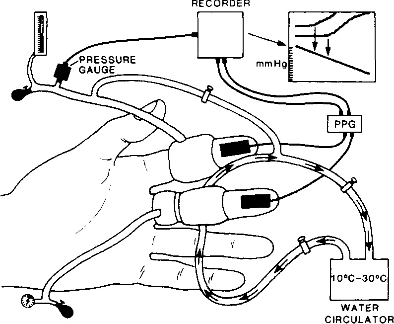 Figure 1 From Apparent Finger Systolic Pressures During Cooling In