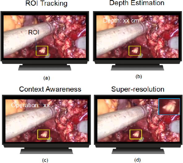 Figure 1 for Real-time Surgical Environment Enhancement for Robot-Assisted Minimally Invasive Surgery Based on Super-Resolution