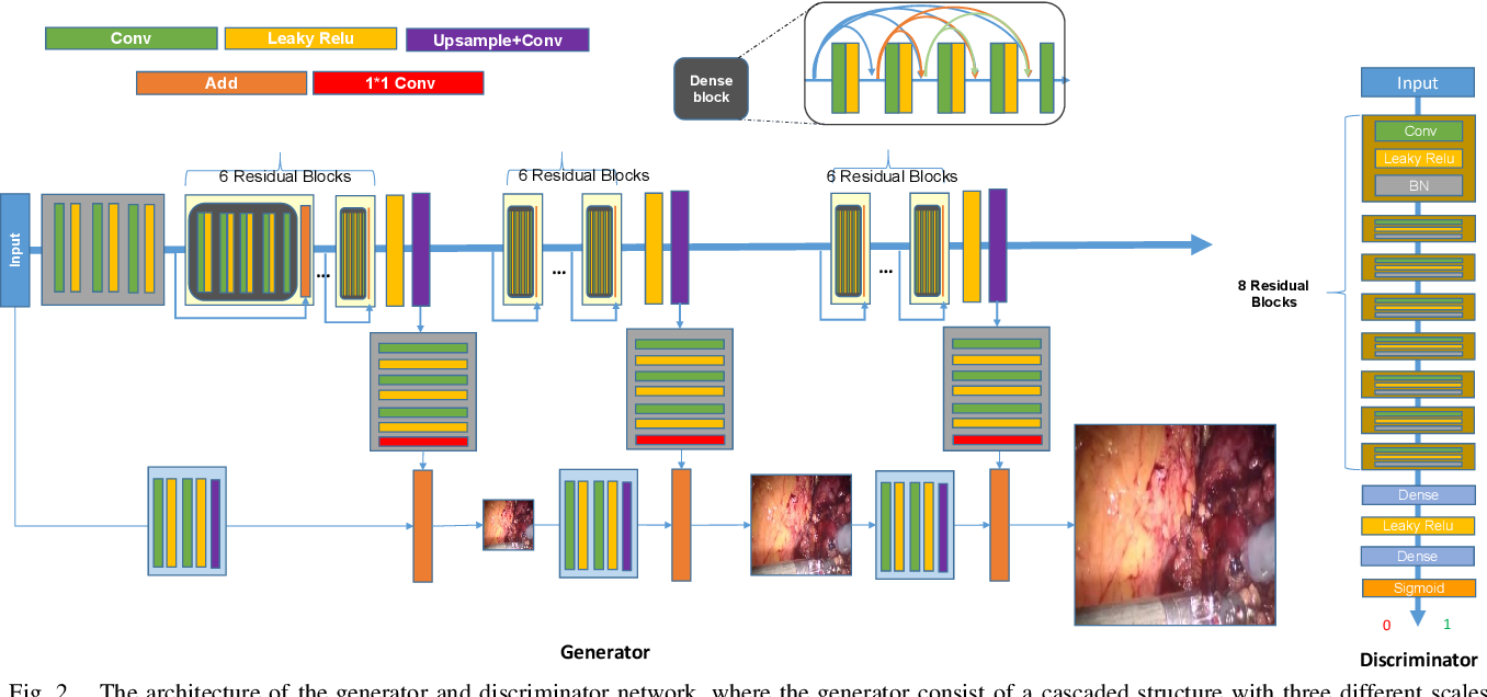 Figure 2 for Real-time Surgical Environment Enhancement for Robot-Assisted Minimally Invasive Surgery Based on Super-Resolution