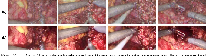 Figure 3 for Real-time Surgical Environment Enhancement for Robot-Assisted Minimally Invasive Surgery Based on Super-Resolution